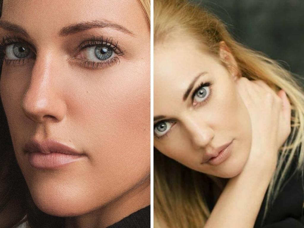 Мерьем Узерли: фото до и после пластики 7